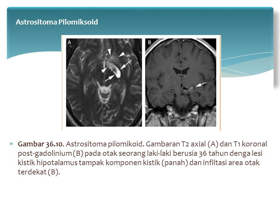 Astrositoma Pilomiksoid