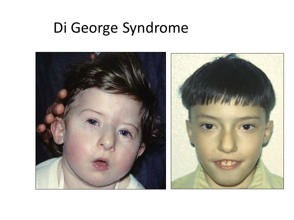 Di George Syndrome Di G Di George Syndrome e Syndrome