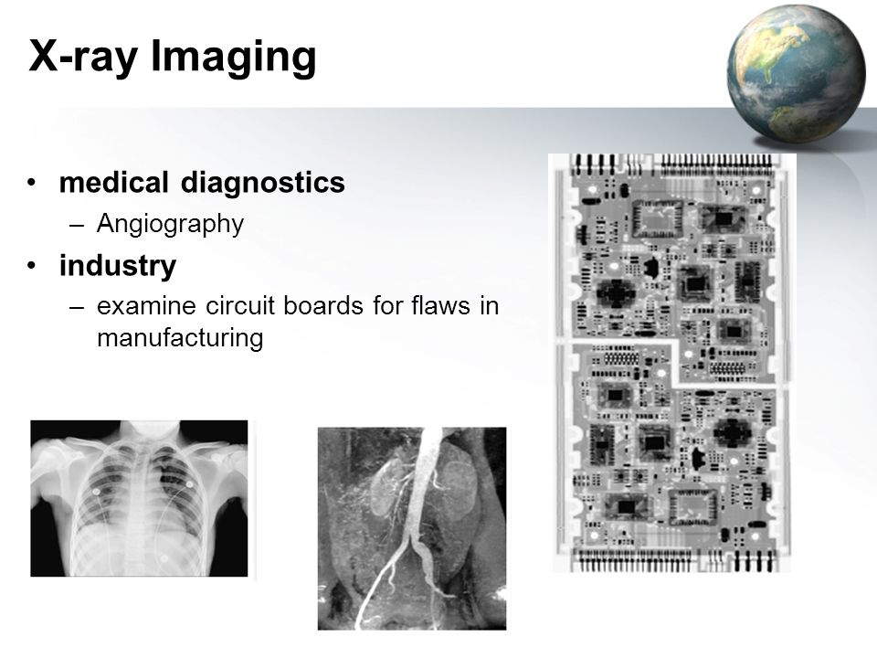 X-ray Imaging medical diagnostics industry Angiography