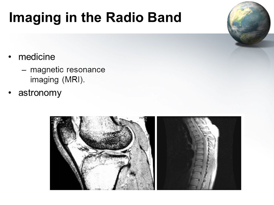 Imaging in the Radio Band