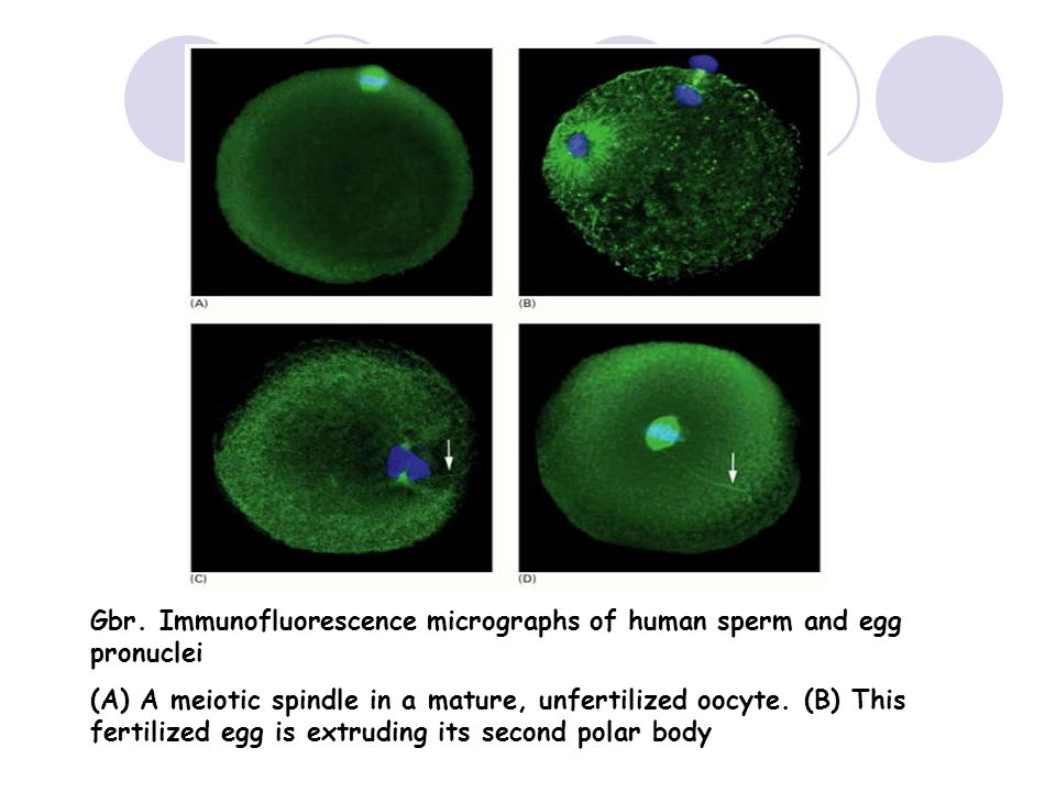 Gbr. Immunofluorescence micrographs of human sperm and egg pronuclei