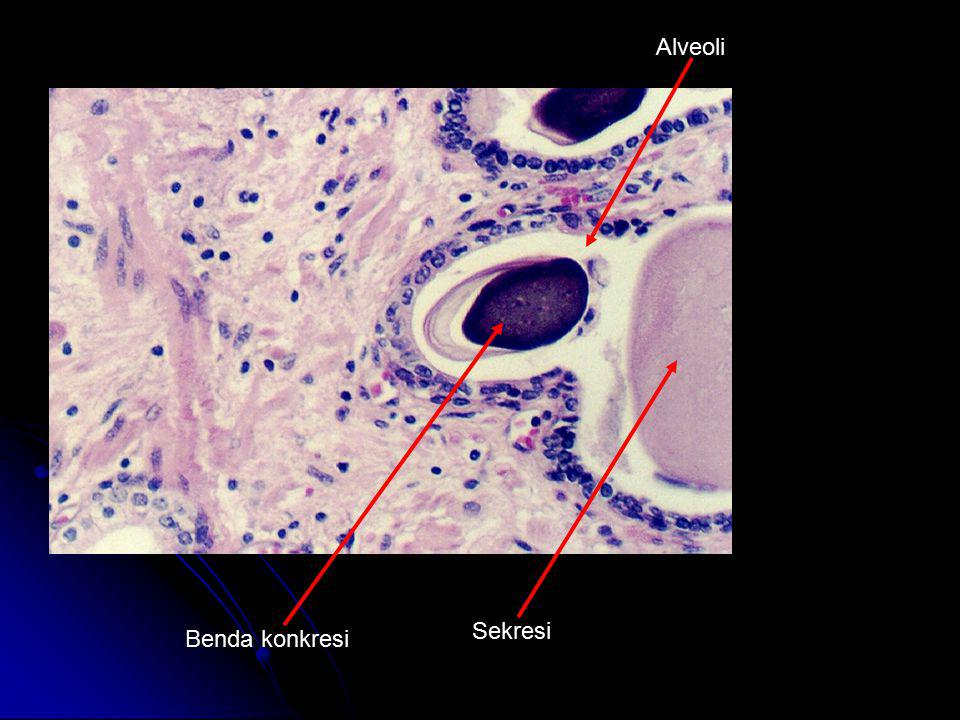 Alveoli Sekresi Benda konkresi