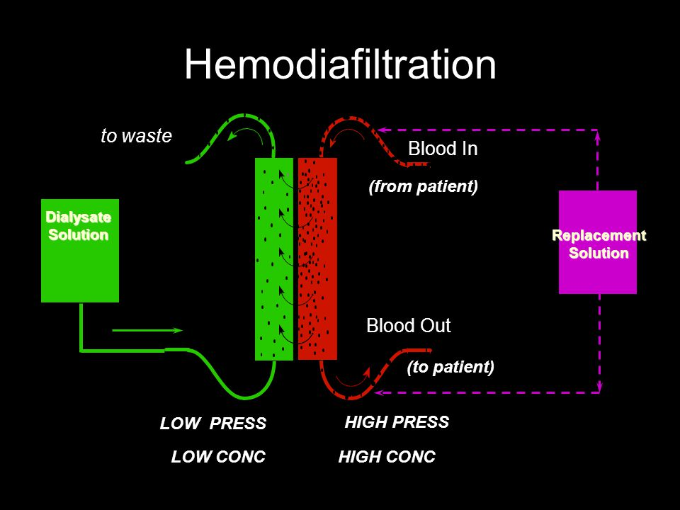 Hemodiafiltration to waste Blood In Blood Out (from patient)