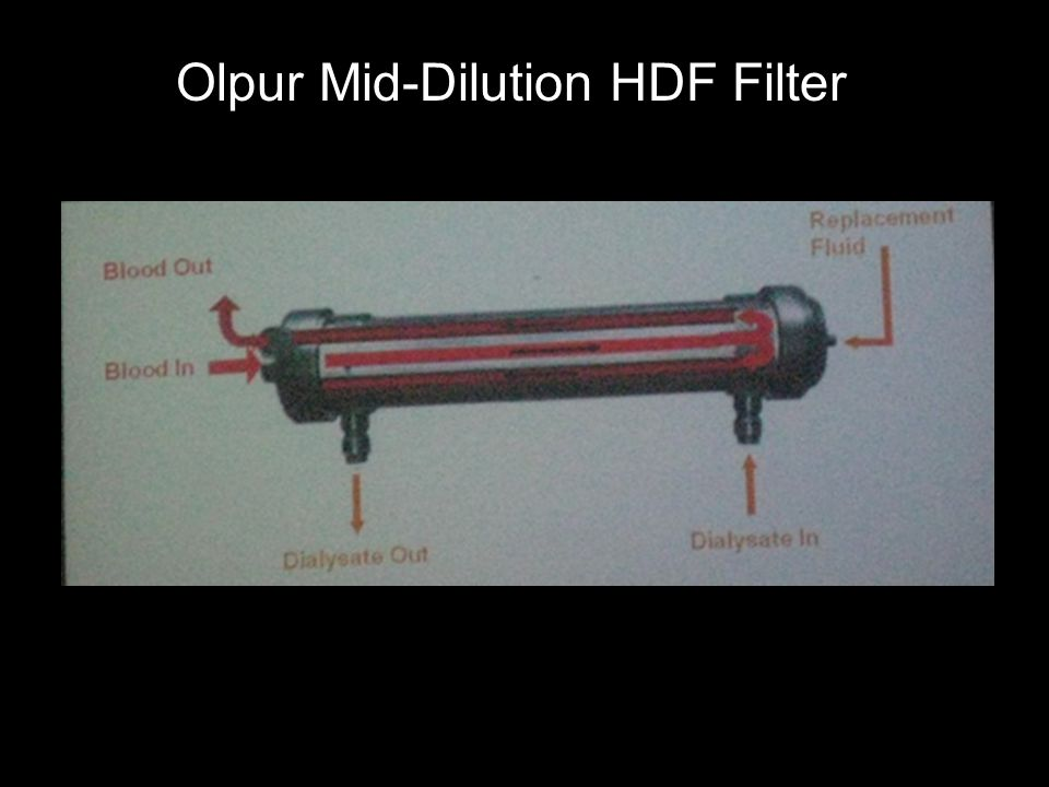 Olpur Mid-Dilution HDF Filter