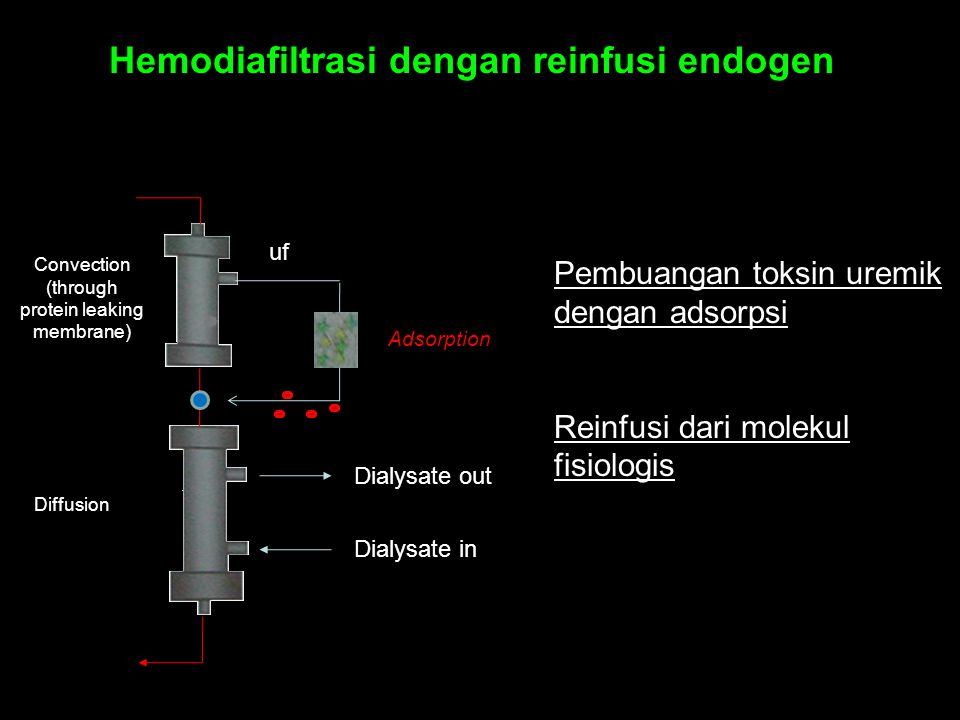 Hemodiafiltrasi dengan reinfusi endogen