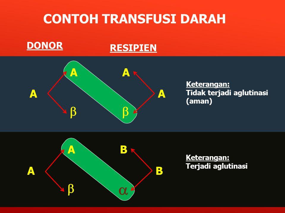  CONTOH TRANSFUSI DARAH    A A A A A B A B DONOR RESIPIEN 