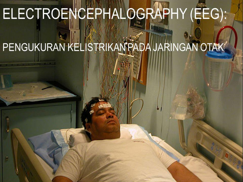 ELECTROENCEPHALOGRAPHY (EEG):