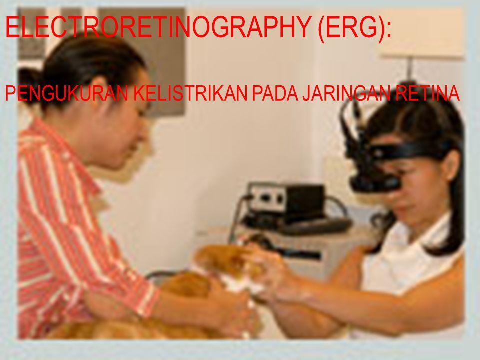ELECTRORETINOGRAPHY (ERG):