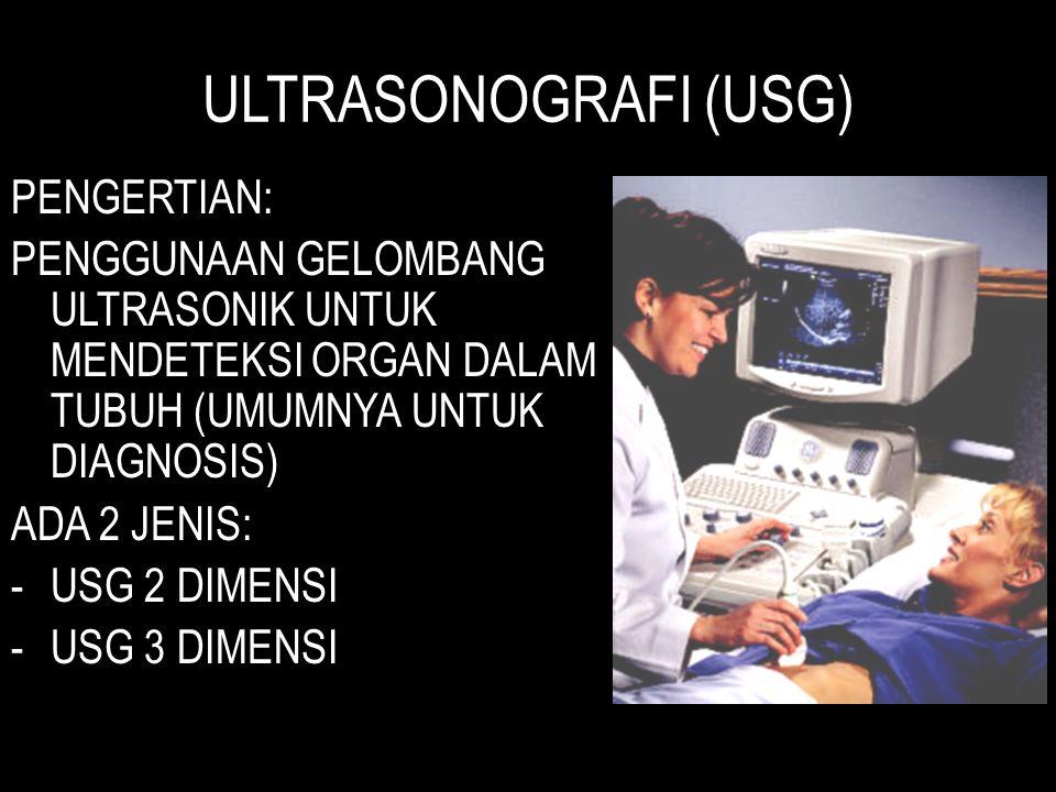 ULTRASONOGRAFI (USG) PENGERTIAN: