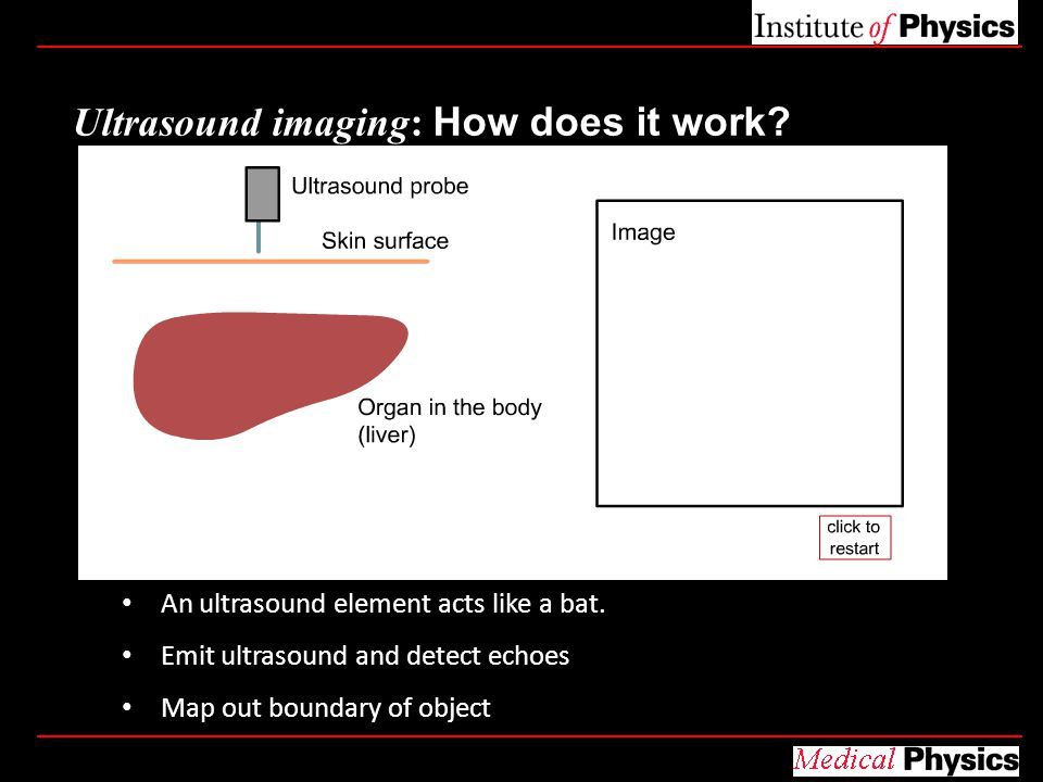 Ultrasound imaging: How does it work