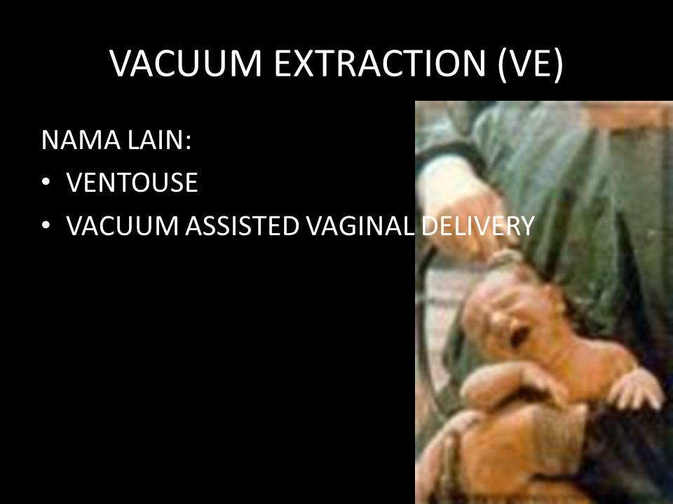 VACUUM EXTRACTION (VE)