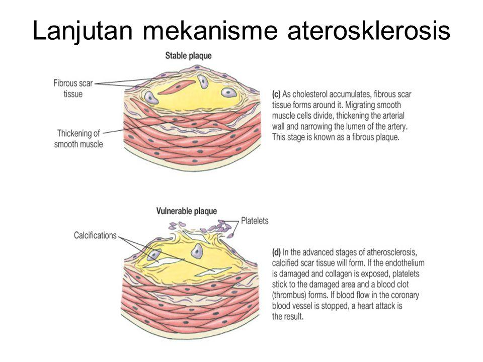 Lanjutan mekanisme aterosklerosis
