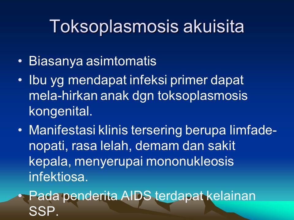 Toksoplasmosis akuisita