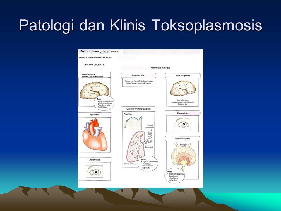 Patologi dan Klinis Toksoplasmosis