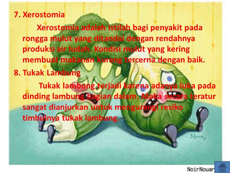 7. Xerostomia