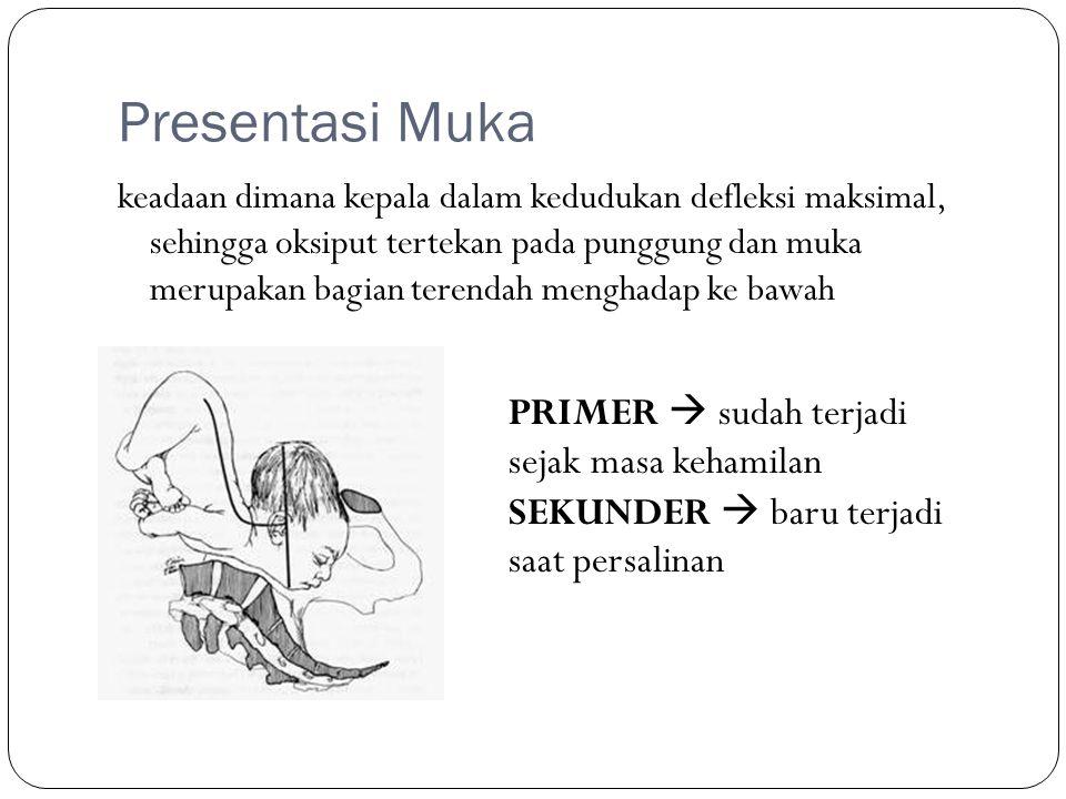 Presentasi Muka PRIMER  sudah terjadi sejak masa kehamilan