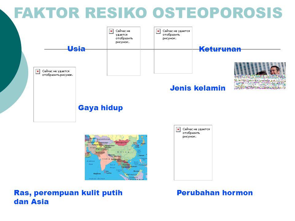 FAKTOR RESIKO OSTEOPOROSIS
