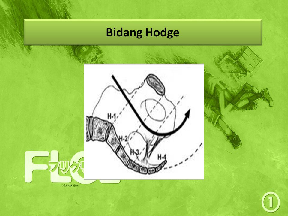 Bidang Hodge