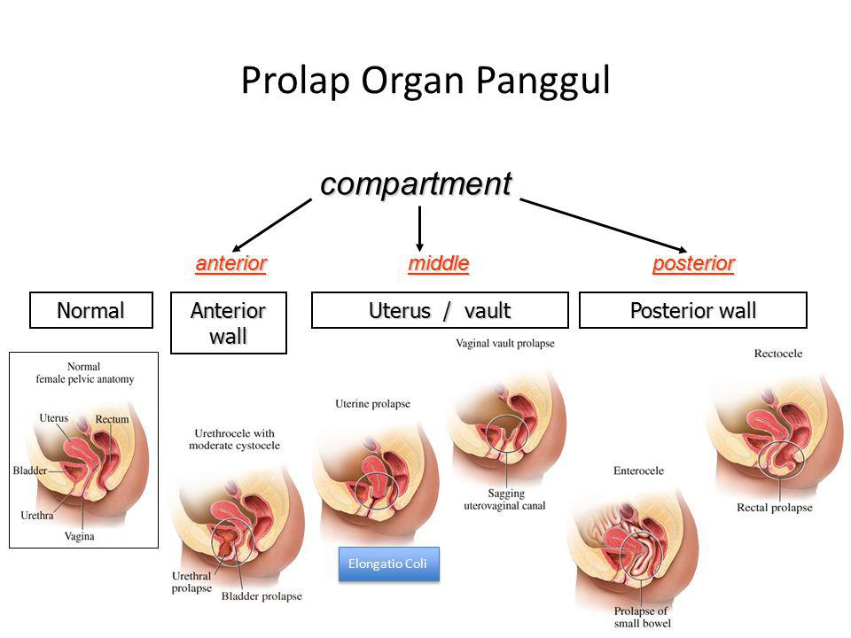 Prolap Organ Panggul compartment anterior middle posterior Normal