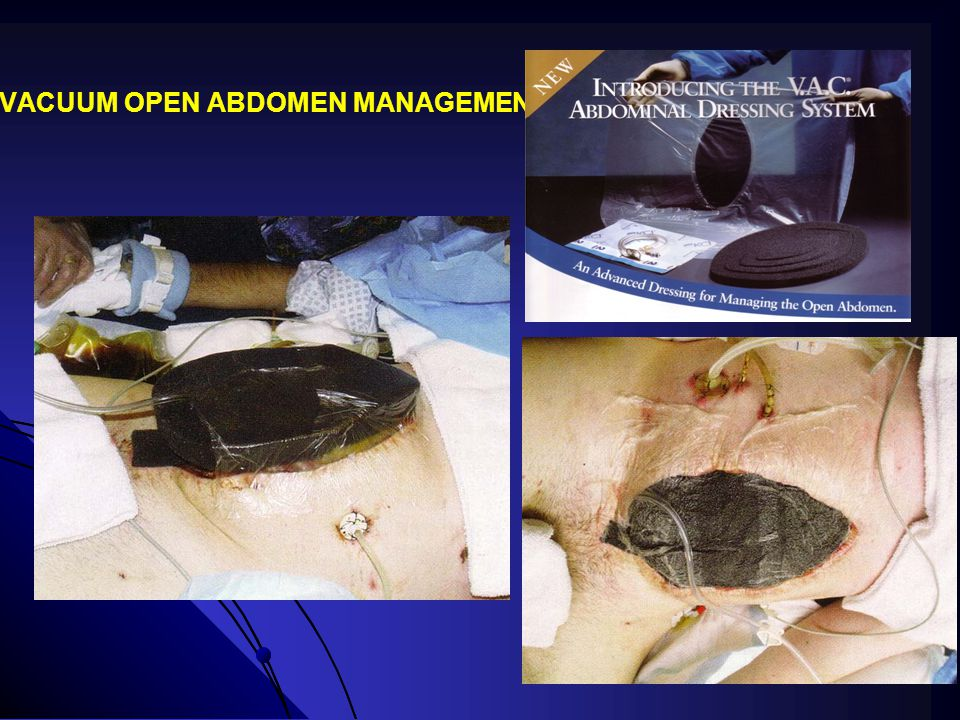 VACUUM OPEN ABDOMEN MANAGEMENT