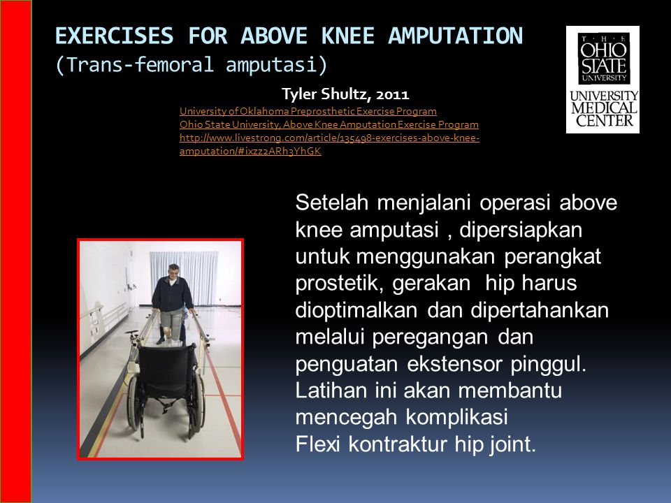 Exercises for Above Knee Amputation (Trans-femoral amputasi)