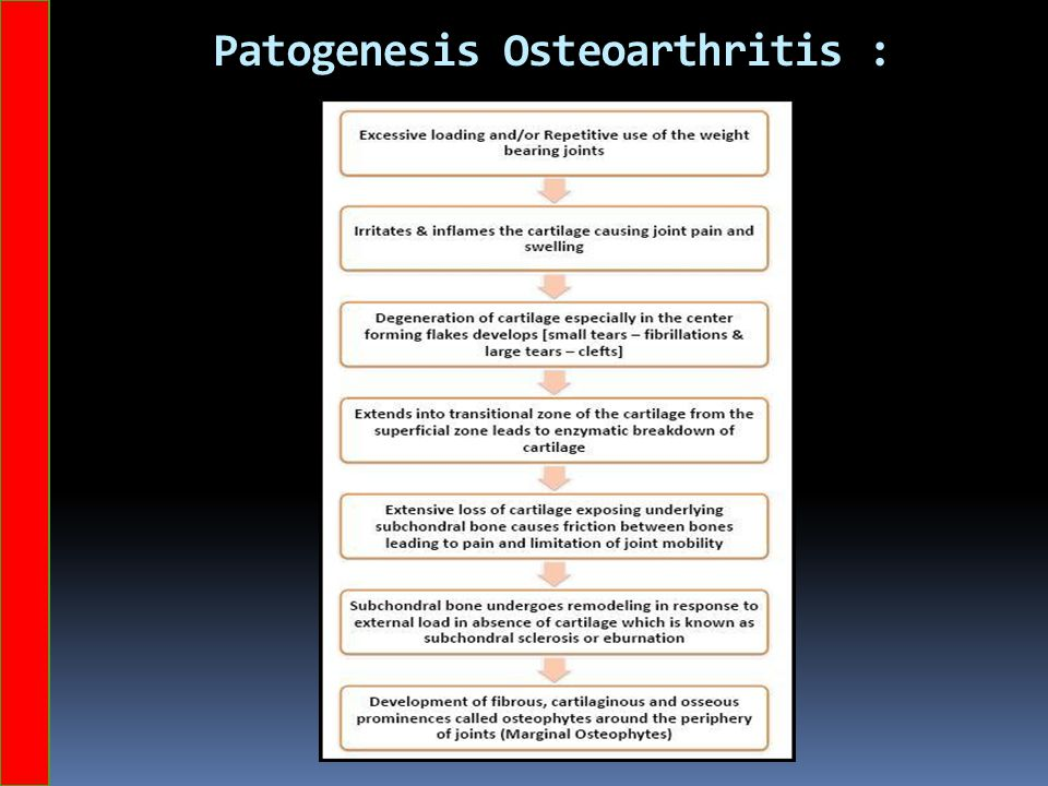 Patogenesis Osteoarthritis :