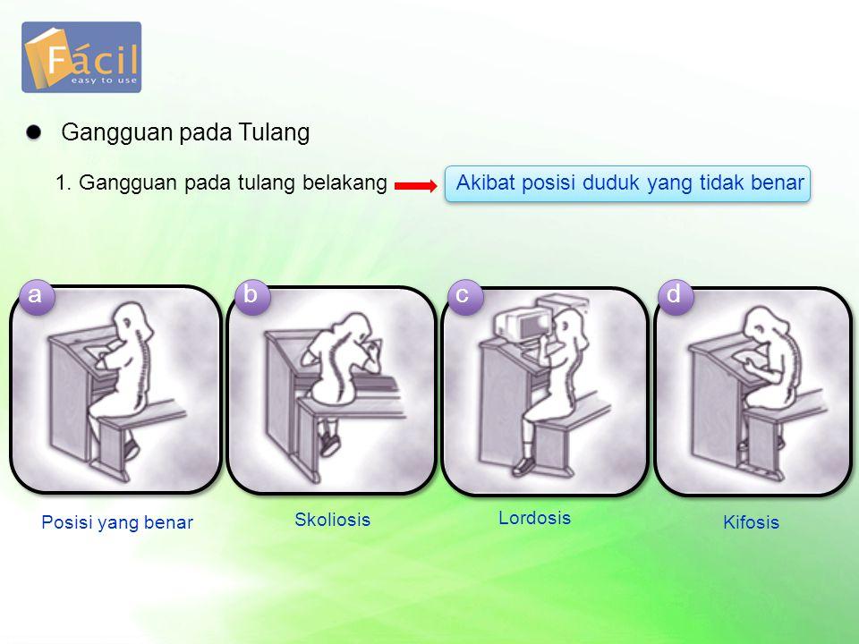 a b c d Gangguan pada Tulang 1. Gangguan pada tulang belakang