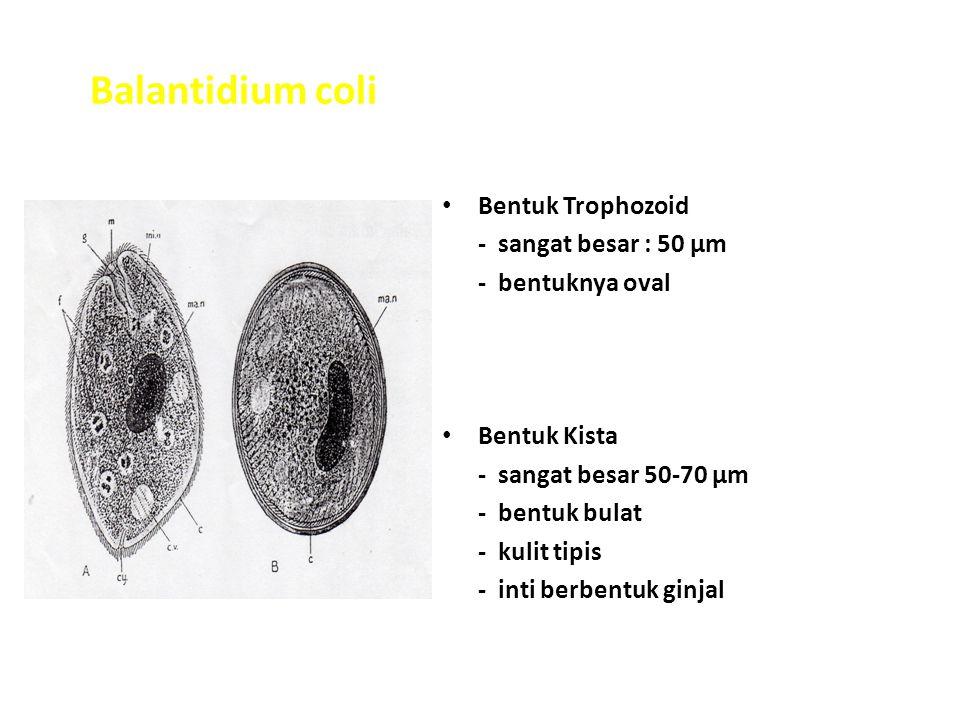 Balantidium coli Bentuk Trophozoid - sangat besar : 50 µm