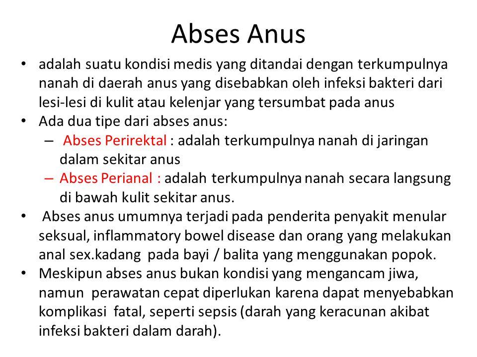 Abses Anus