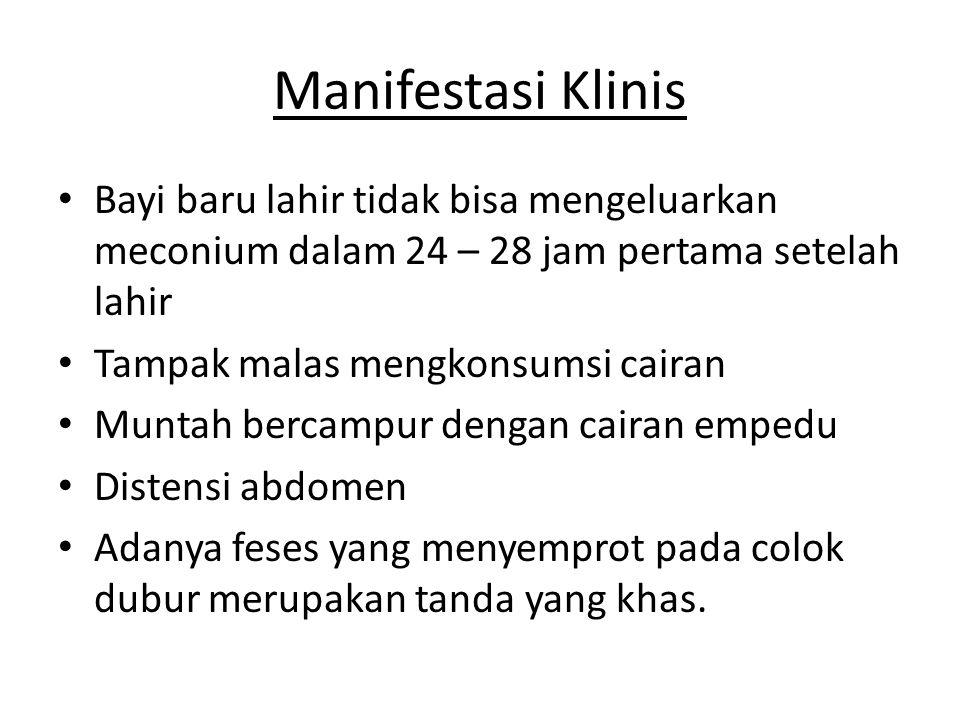 Manifestasi Klinis Bayi baru lahir tidak bisa mengeluarkan meconium dalam 24 – 28 jam pertama setelah lahir.