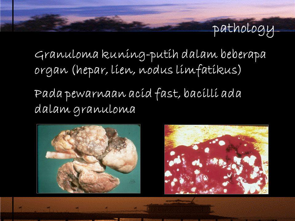pathology Granuloma kuning-putih dalam beberapa organ (hepar, lien, nodus limfatikus) Pada pewarnaan acid fast, bacilli ada dalam granuloma.