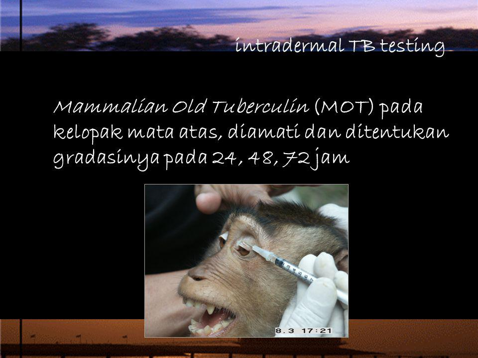 intradermal TB testing