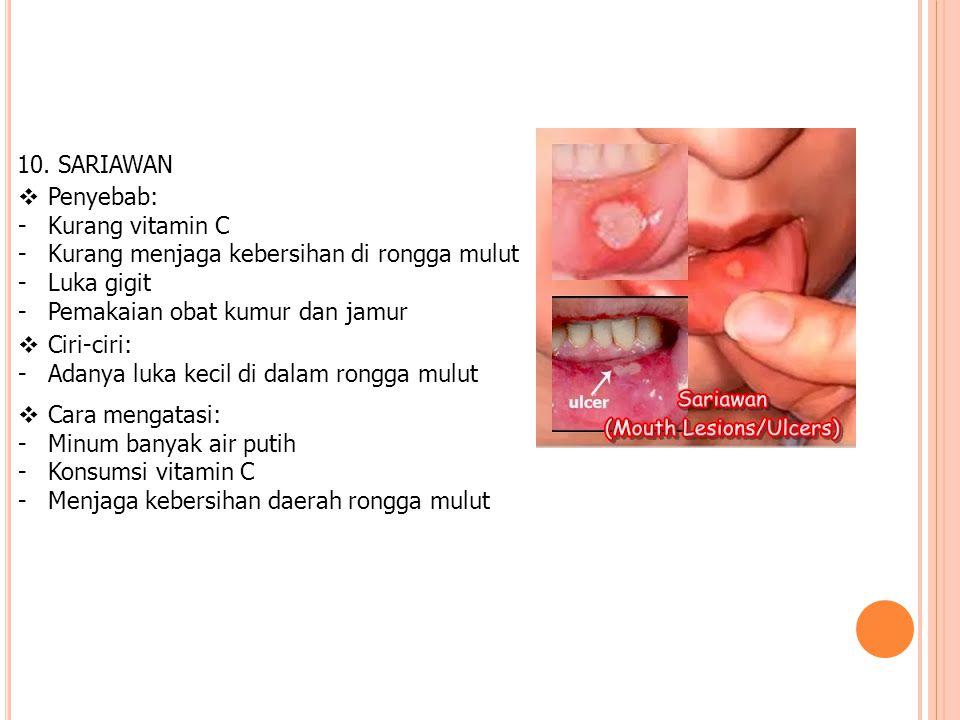 10. SARIAWAN Penyebab: Kurang vitamin C. Kurang menjaga kebersihan di rongga mulut. Luka gigit. Pemakaian obat kumur dan jamur.