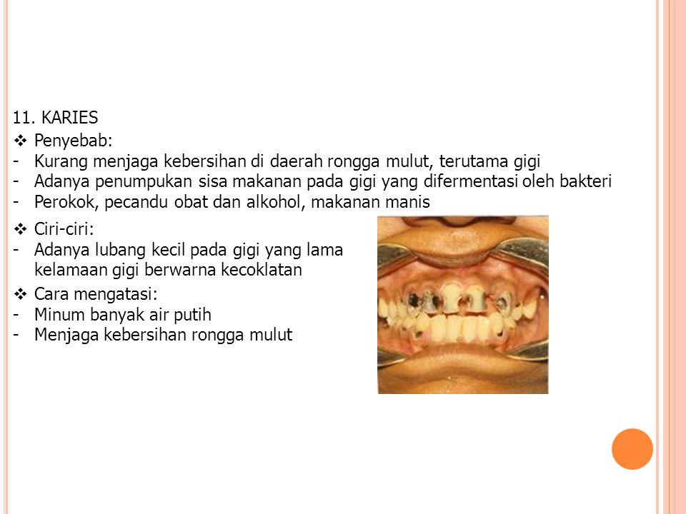 11. KARIES Penyebab: Kurang menjaga kebersihan di daerah rongga mulut, terutama gigi.