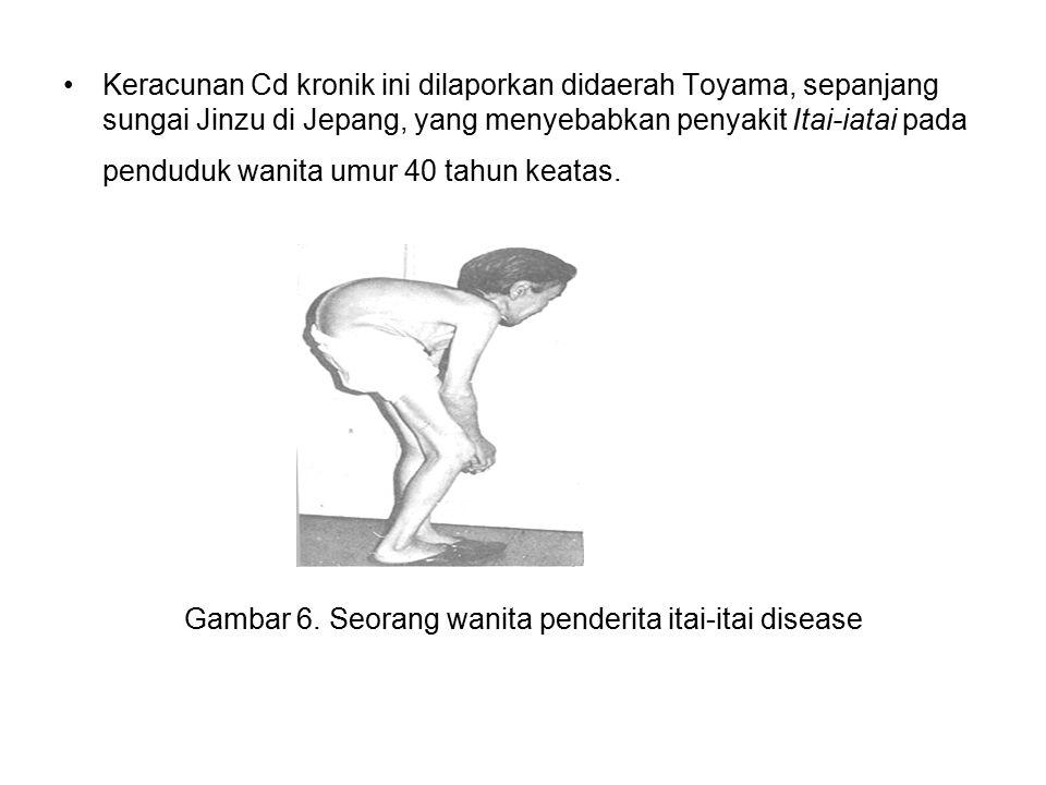 Gambar 6. Seorang wanita penderita itai-itai disease