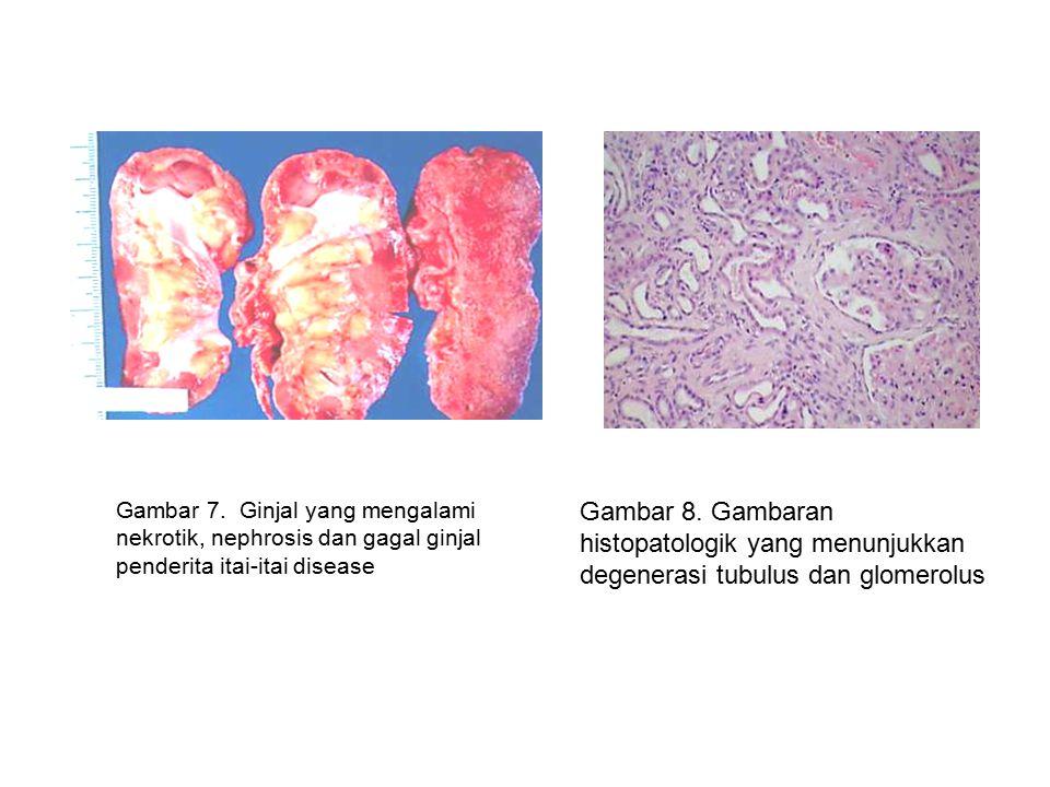 Gambar 7. Ginjal yang mengalami nekrotik, nephrosis dan gagal ginjal penderita itai-itai disease