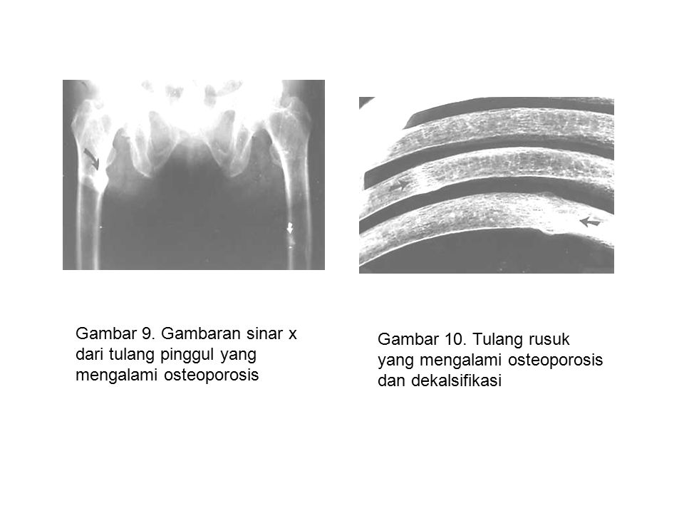 Gambar 9. Gambaran sinar x dari tulang pinggul yang mengalami osteoporosis