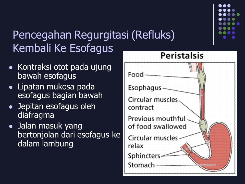 Pencegahan Regurgitasi (Refluks) Kembali Ke Esofagus