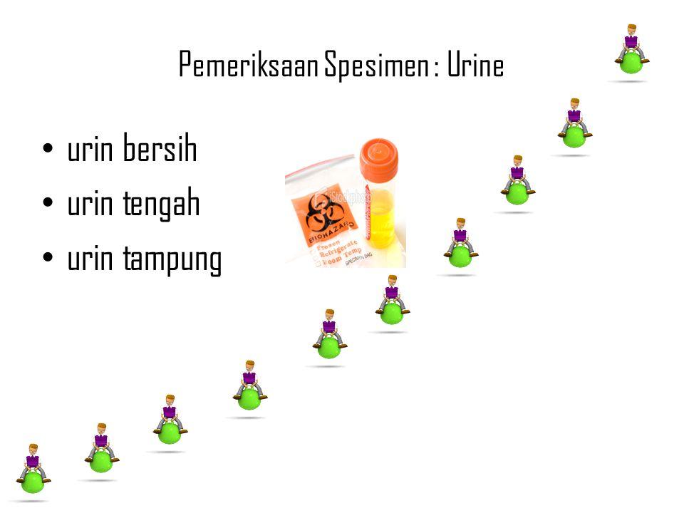 Pemeriksaan Spesimen : Urine