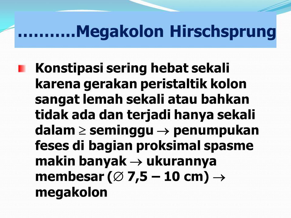 ………..Megakolon Hirschsprung