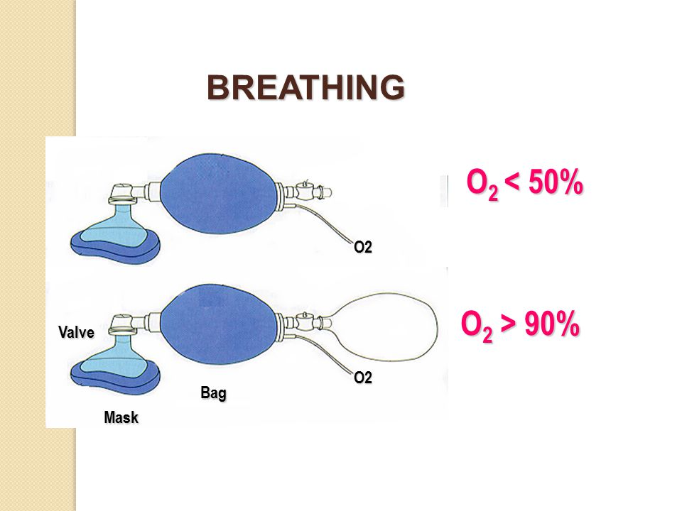 BREATHING O2 < 50% O2 Valve O2 > 90% Bag O2 Mask