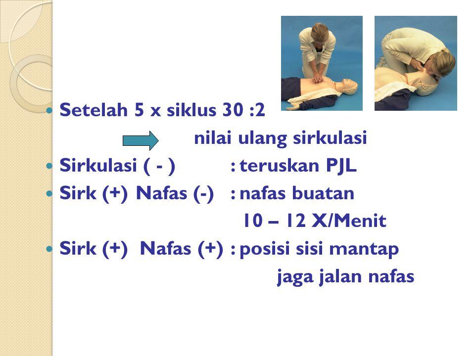 Setelah 5 x siklus 30 :2 nilai ulang sirkulasi. Sirkulasi ( - ) : teruskan PJL. Sirk (+) Nafas (-) : nafas buatan.