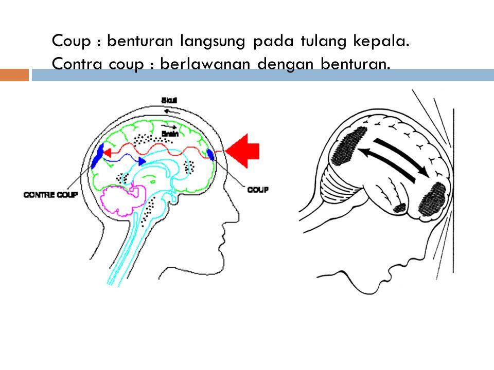 Coup : benturan langsung pada tulang kepala