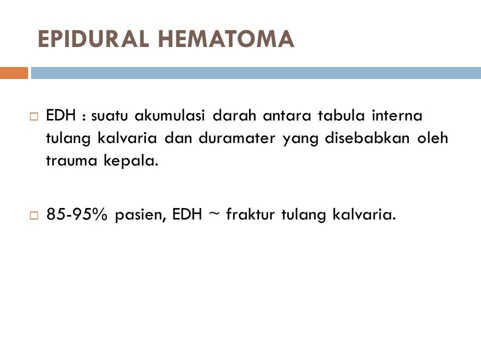 EPIDURAL HEMATOMA EDH : suatu akumulasi darah antara tabula interna tulang kalvaria dan duramater yang disebabkan oleh trauma kepala.