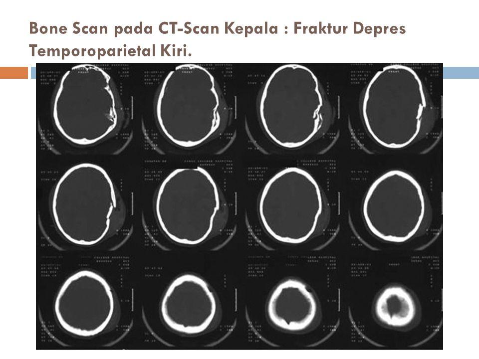 Bone Scan pada CT-Scan Kepala : Fraktur Depres Temporoparietal Kiri.