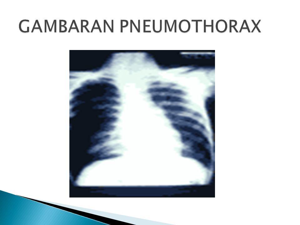 GAMBARAN PNEUMOTHORAX