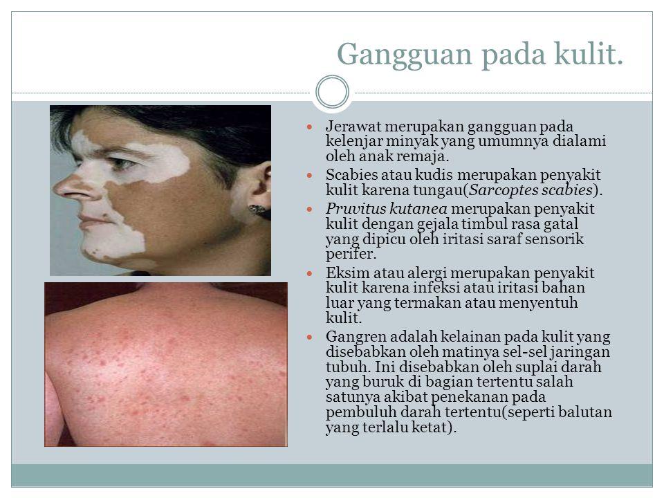 Gangguan pada kulit. Jerawat merupakan gangguan pada kelenjar minyak yang umumnya dialami oleh anak remaja.