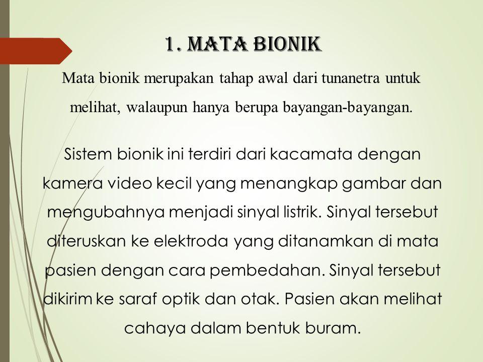 1. MATA BIONIK Mata bionik merupakan tahap awal dari tunanetra untuk melihat, walaupun hanya berupa bayangan-bayangan.