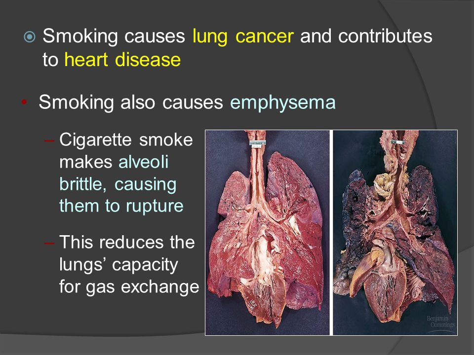 Smoking causes lung cancer and contributes to heart disease