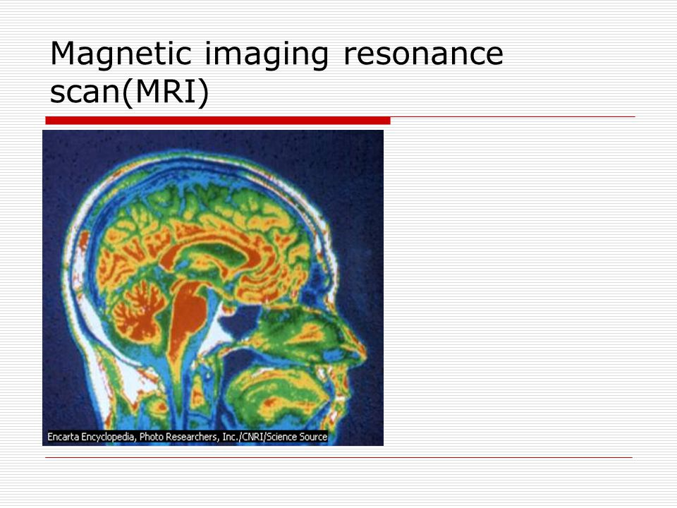Magnetic imaging resonance scan(MRI)